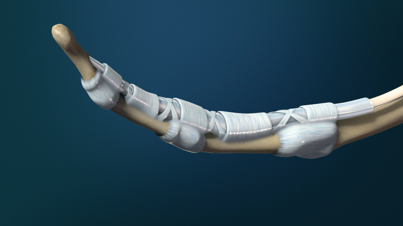 Trigger Finger (Stenosing Tenosynovitis)
