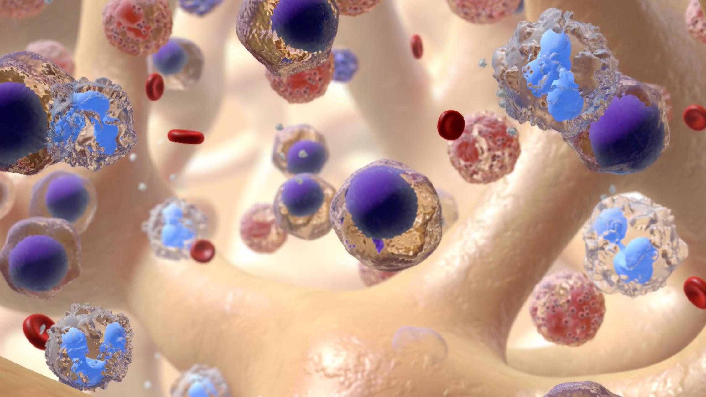 Treatment Options for Leukemia